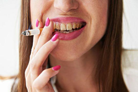 Làm sạch mảng bám, vết ố vàng trên răng, hạn chế sự hình thành và lắng đọng cao răng.